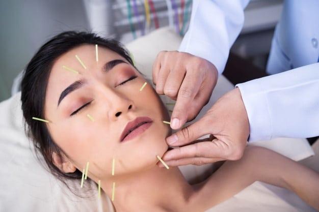 Mujer Sometida Tratamiento Acupuntura Cara 35076 3551